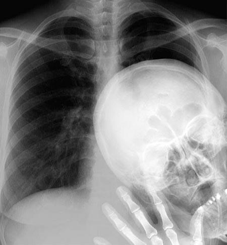 Peekaboo X-ray