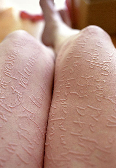 Dermatographia | Allergic Skin Writing