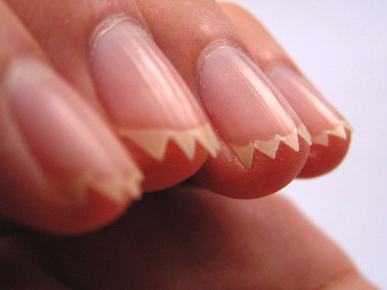 Sawtooth Fingernails