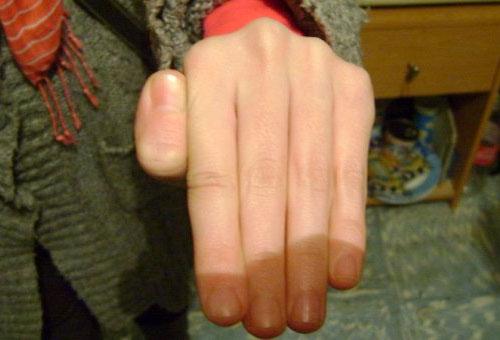 Reversible Thumb